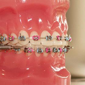 braces_close