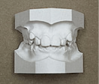 plaster_teeth_model